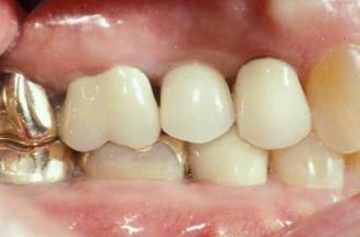 fort worth texas dental implant beautiful result