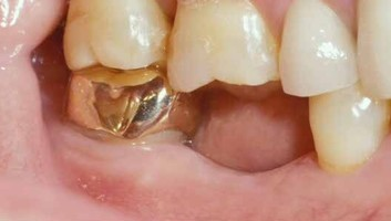 fort worth texas missing tooth