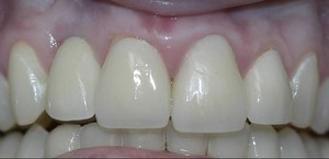 fort worth texas cosmetic dental implant front tooth