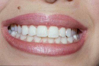 fort worth texas cosmetic gum reshaping