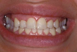 fort worth texas cosmetic gum shaping