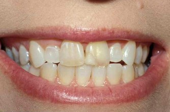 excess gum tissue and short teeth