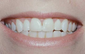 gum lift and smile enhancement