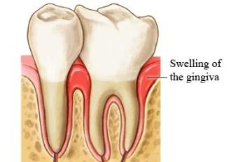 gingiva swelling
