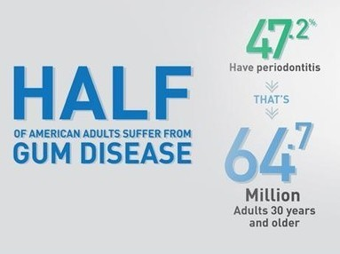 gum disease affects half of americans