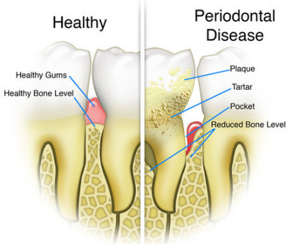 fort worth periodontal disease treatment
