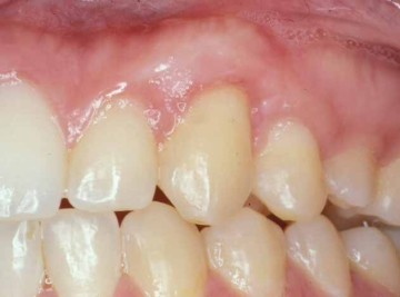 fort worth texas gum graft
