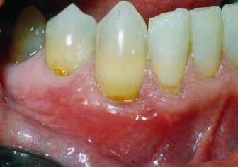 fort worth texas cosmetic gum graft
